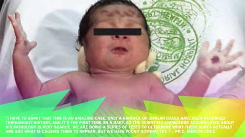 a-baby-in-Philippines,-born-with-the-stigmata-of-Jesus